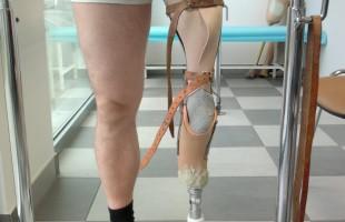 Proteza z mankietem skórzanym